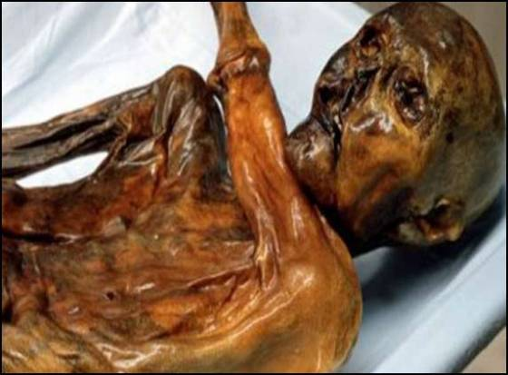 5300-yr-old mummy's RBC oldest in history