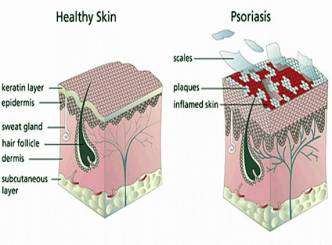 What is psoriasis? Want to know?