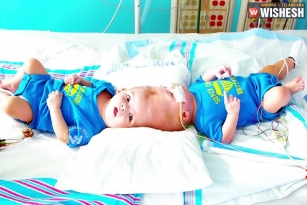 Rare Conjoined Twin Boys Undergo Surgery, Seperated After 27 Hrs