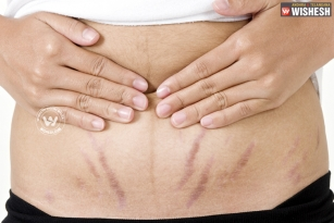 Tips to lighten stretch marks