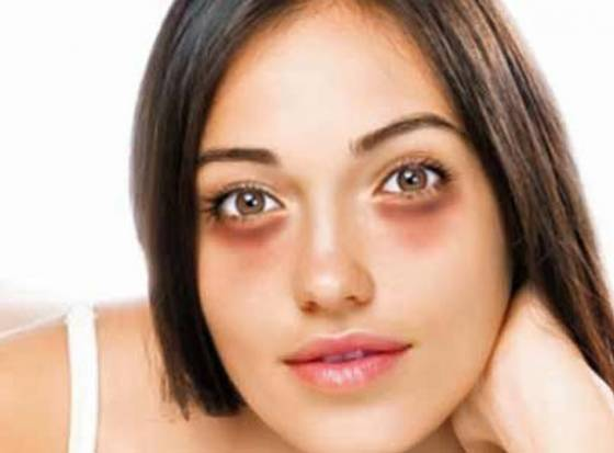 Home remedies to cure dark circles...!