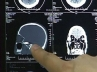 Delhi Doctors removed bullet from boy's skull after 27 Hours