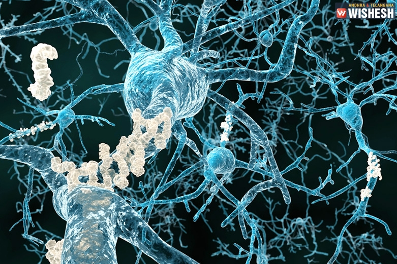 Brain protein causes Alzheimer's and memory loss, study revealed
