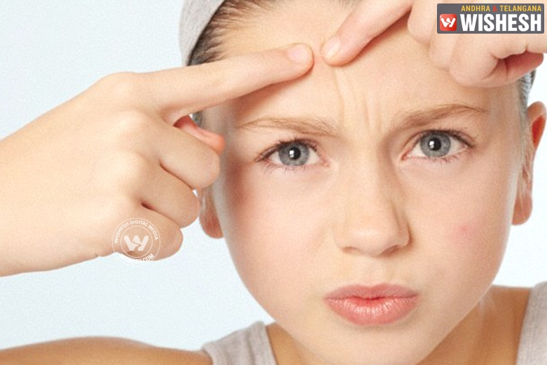 5 Natural Remedies to get rid of Pimples